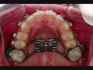 braces 10