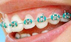 braces1